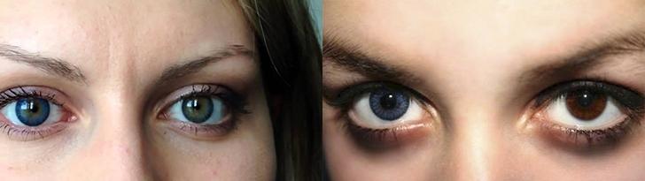Глаза хамелеон у человека