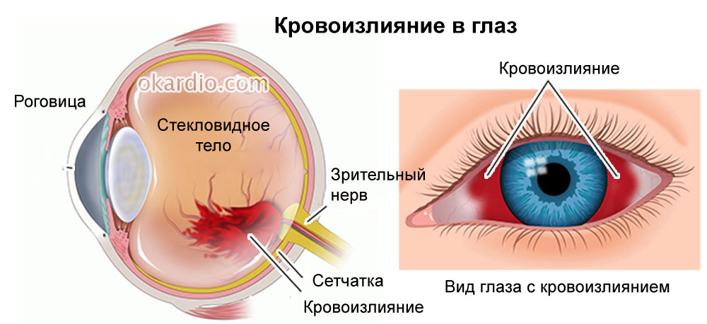 Как сделать чтобы лопнули капилляры глаз