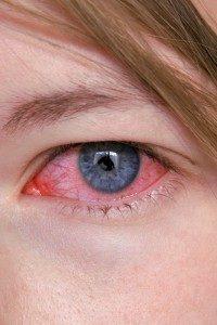 Болезни глаз плавающие точки перед глазами